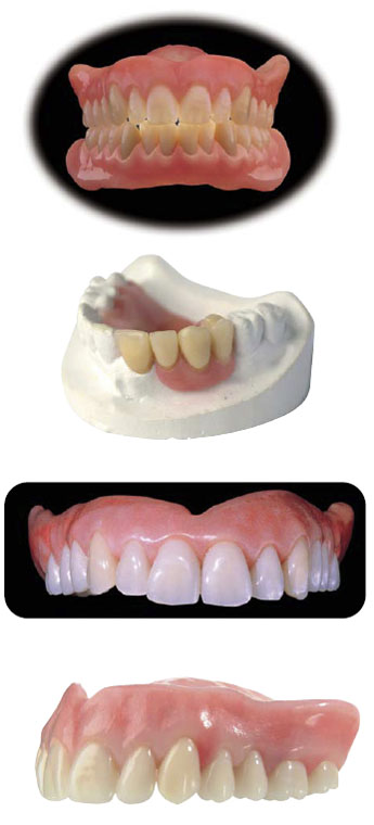 Enigma Cosmetic Dentures